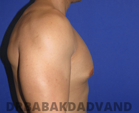Before & After Body Builders 5 Big Photo