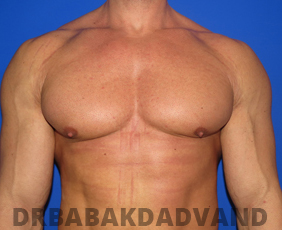 Before & After Body Builders 15 Big Photo