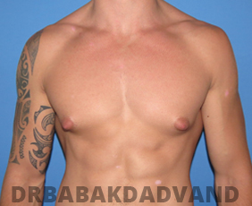 Before & After Body Builders 7 Big Photo
