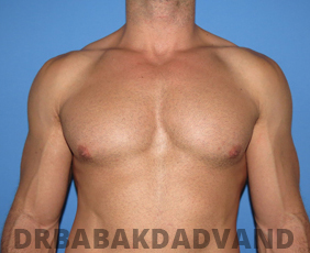 Before & After Body Builders 8 Big Photo