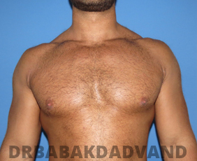 Before & After Body Builders 9 Big Photo