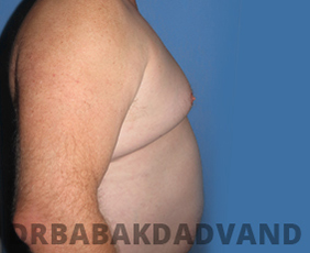Before & After Weight Loss 2 Big Photo