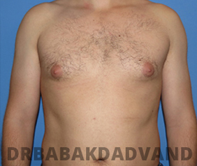 Before & After Puffy Nipples 16 Big Photo