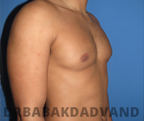 Before & After Puffy Nipples 20 Big Photo