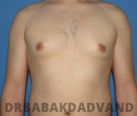 Before & After Puffy Nipples 23 Big Photo