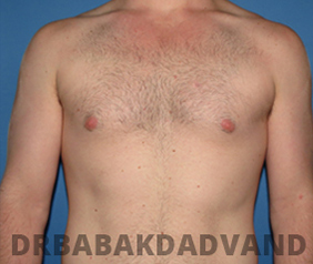 Before & After Puffy Nipples 25 Big Photo