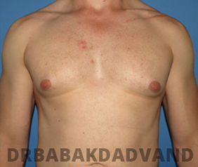 Before & After Puffy Nipples 29 Big Photo