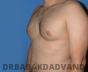 Before & After Revision Gynecomastia 2 Big Photo