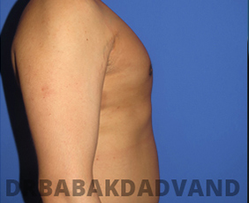 Before & After Revision Gynecomastia 3 Big Photo