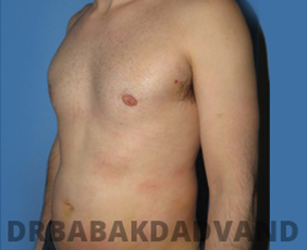 Before & After Revision Gynecomastia 5 Big Photo