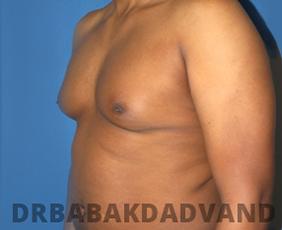 Before & After Revision Gynecomastia 6 Big Photo