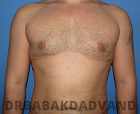 Before & After Revision Gynecomastia 7 Big Photo