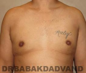 Before & After Revision Gynecomastia 1 Big Photo