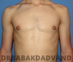 Before & After Puffy Nipples 36 Big Photo