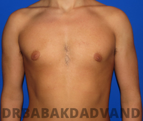 Before & After Puffy Nipples 37 Big Photo