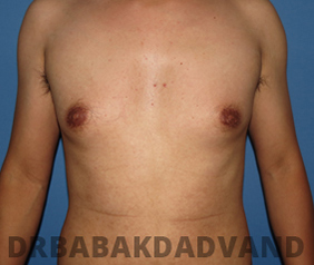 Before & After Puffy Nipples 32 Big Photo