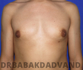 Before & After Puffy Nipples 34 Big Photo