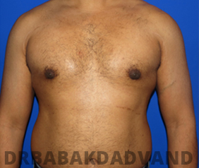 Before & After Puffy Nipples 40 Big Photo