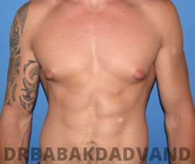 Before & After Puffy Nipples 42 Big Photo