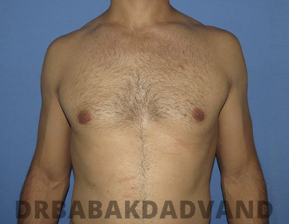 Before & After Puffy Nipples 44 Big Photo